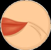 Зморшки навколо губ