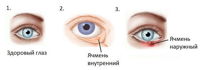 Ефективні способи лікування ячменю на оці
