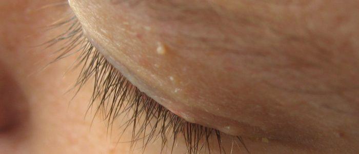 Бородавка на веке глаза: как убрать, удаление, лечение