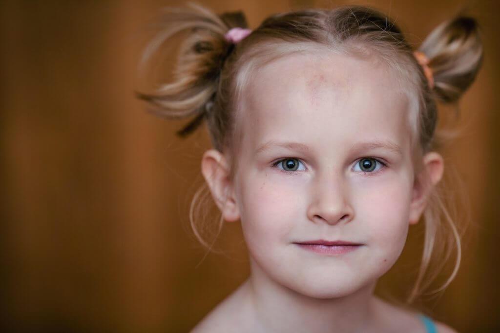 Бородавки на голове под волосами: как удалить, лечение, виды