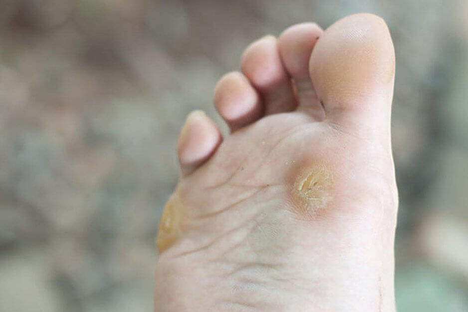 Бородавки на ногах: причины и лечение