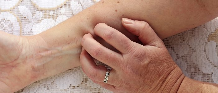 Чешется родинка: причины, что делать, диагностика