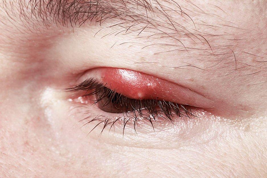 Чирей на глазу: что делать, как лечить