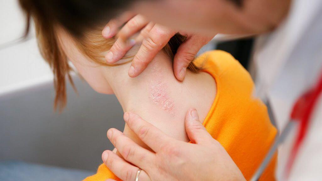 Что такое жировик: от чего возникает, что делать, как лечить