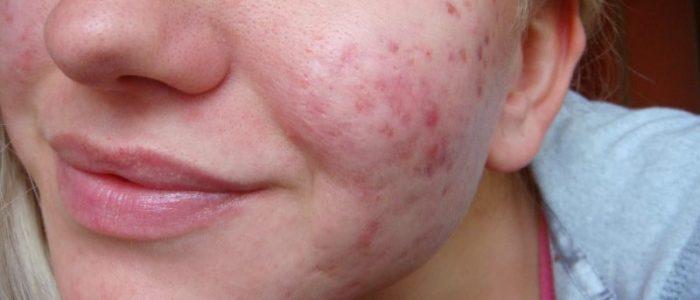 Демодекоз: лечение на лице, симптомы, препараты