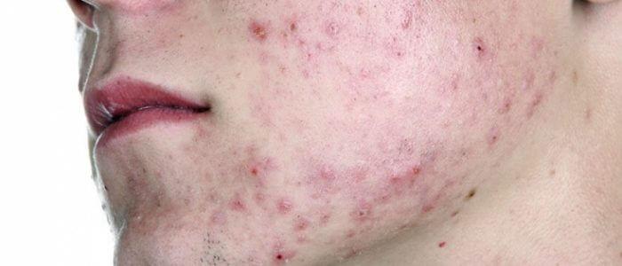 Демодекоз: лечение, симптомы, причины и профилактика