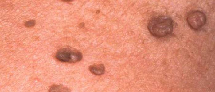 Генитальные бородавки у женщин, мужчин: лечение, симптомы