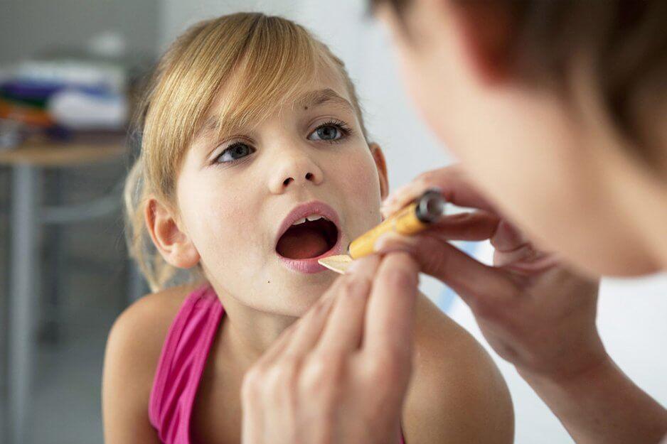 Герпес во рту: симптомы, лечение