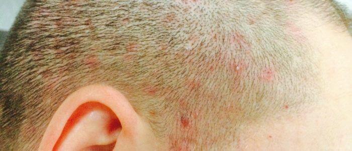 Гнойнички на голове: как лечить, причины, профилактика