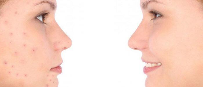 Лечение прыщей на лице: препараты, питание, косметические процедуры