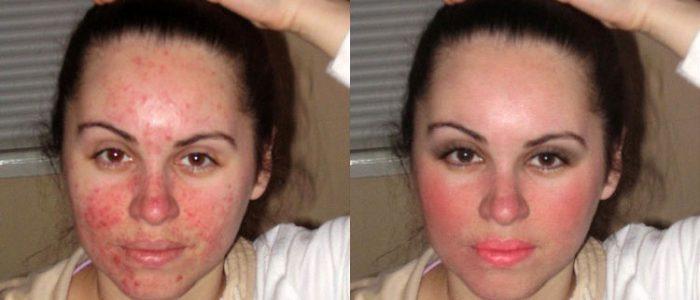 Лицевой клещ: лечение, симптомы, диагностические мероприятия