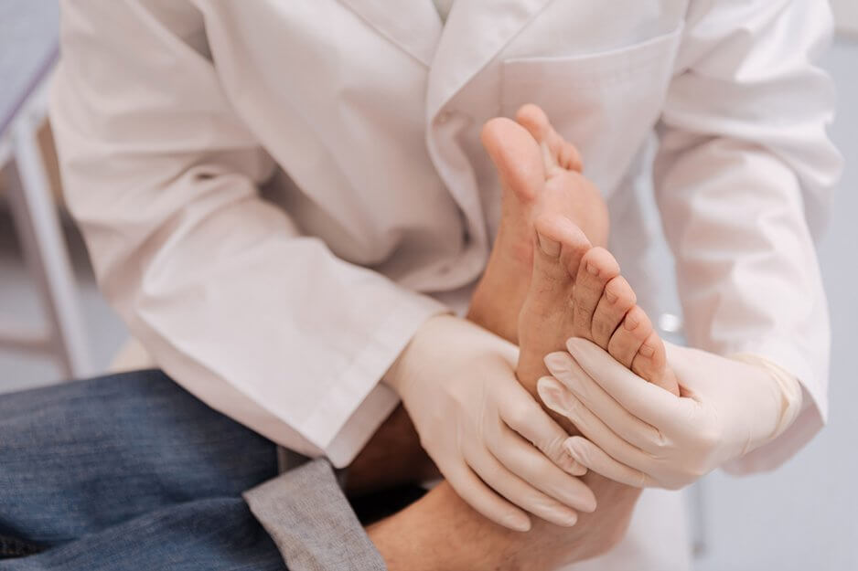 Мозоль между пальцами ног: как лечить