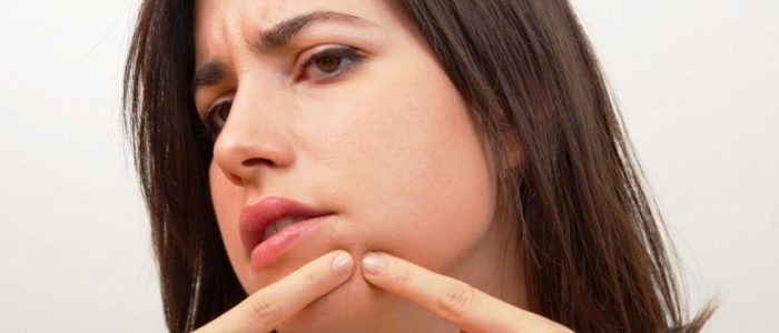 Подкожные прыщи на подбородке: причины, лечение