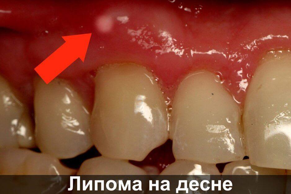 Прыщ на десне над зубом: причины, лечение