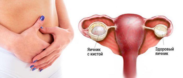 Прыщи из-за кисты яичника: причины, как избавиться