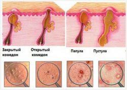 Прыщи на спине: причины, лечение, профилактика