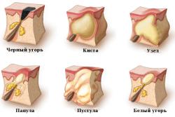 Прыщи в паху: лечение, причины, разновидности