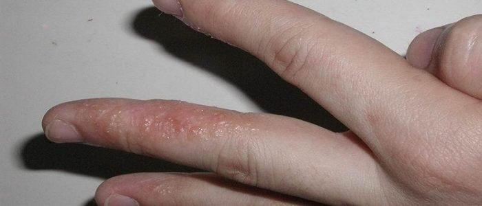Прыщик на пальце руки: лечение, причины, профилактика