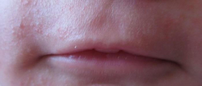 Прыщики вокруг рта у ребенка: чем лечить, причины