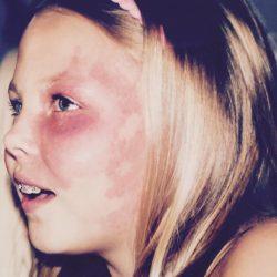Родимое пятно на лице: причины, лечение, как убрать