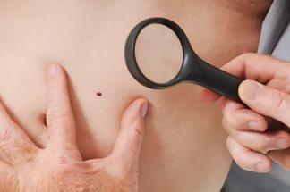 Родинка или меланома кожи: как распознать, как отличить