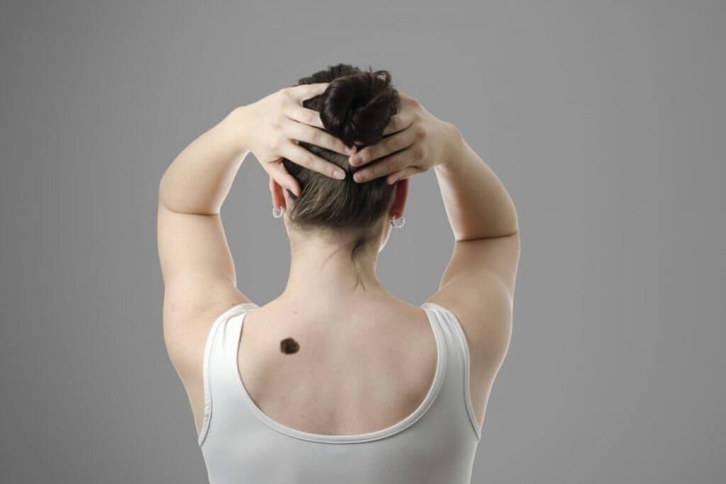 Родинка на спине: как удалить, значение у женщин и мужчин, причины