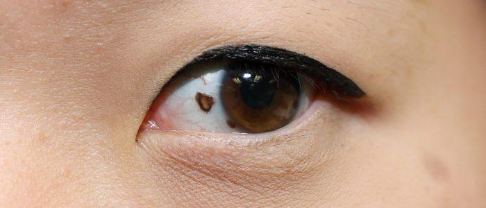 Родинка в глазу: как удалить, диагностика, прогнозы