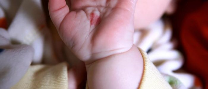 Родинки у ребенка: что делать, как удалить, причины