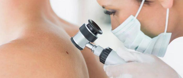 Удаление родинок: анализы, методы, уход за кожей