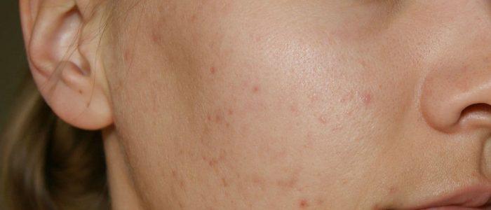 Угревая сыпь: лечение, причины, симптомы и диагностика