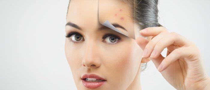 Угри на лице: лечение в домашних условиях, народные средства