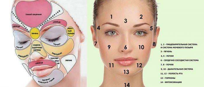 Угри на лице: причины возникновения, симптомы