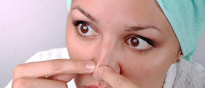 Угри на носу: что делать, лечение, причины и разновидности