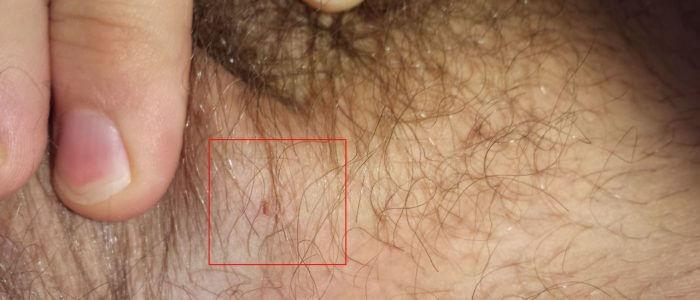 Виды бородавок на теле человека: обыкновенные, подошвенные, генитальные