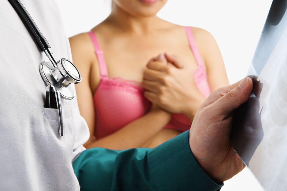 Внутрипротоковая папиллома молочной железы: симптомы, лечение