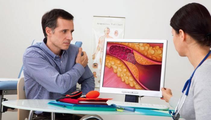 Діагностика атеросклерозу судин мозку